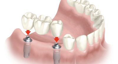 implantes1.jpg