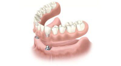 implantes7.jpg