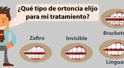 ortodoncia4.jpg