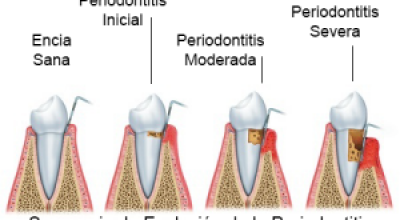 periodoncia2.png